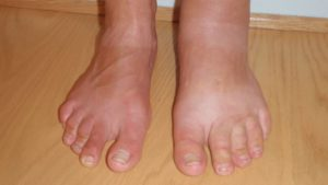 Отёки ног после начала приёма Амлодипина