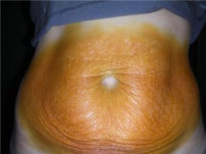 Ожог при беременности