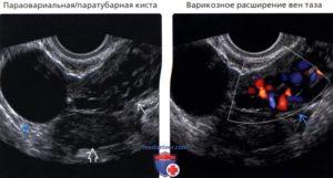 Параовариальная киста+эндометриоз