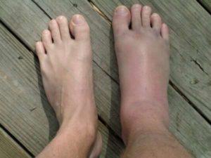 Отек ноги после дтп