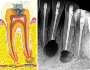 Гранулема на постоянном зубе у ребенка