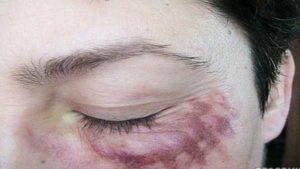 Ожог от йода на лице