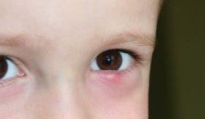 Халязион у ребенка 2.5 лет