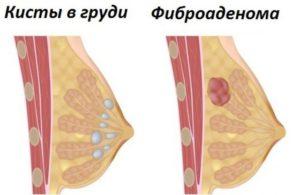Фиброаденома или киста молочной железы
