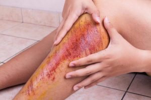 Глубокая рана в колене