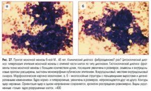 Фиброзо-кистозная мастопатия, диагноз по цитологии