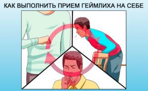 Ощущение застрявшей таблетки в горле