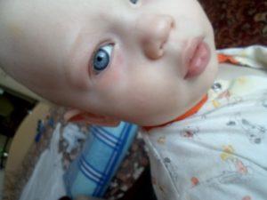 Опух левый глаз у ребенка