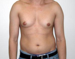 Недоразвитая грудь