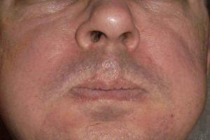 Горит лицо, пульсирует в район щёк и носа