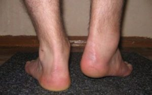 Хромота на правую ногу