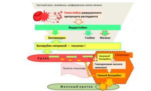 Газообразование, повышенный билирубин