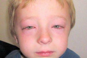 Опухло лицо у ребенка