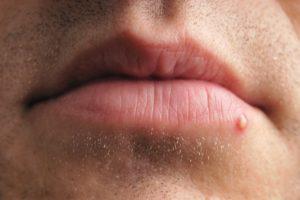 Небольшой красный прыщ на кайме верхней губы