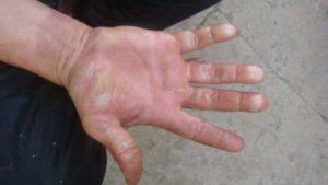 Ожег фаланги пальца