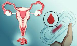 Ок при эндометриозе
