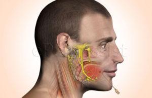 Немеет правая сторона лица, видны вены на лице