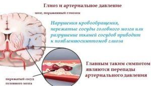 Очаги микроангиопатии в лобных долях мозга