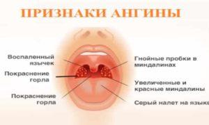 ОРВИ, фолликулярная ангина и кишечная инфекция