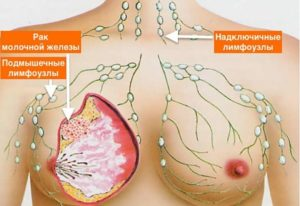 Опухла грудь