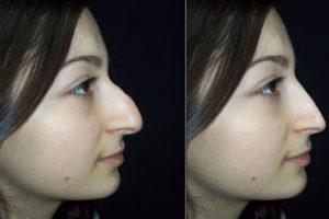 Горбинка на носу у ребёнка
