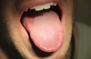 Горечь и жжение во рту