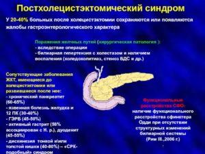 Гастрит, хр. Панкреатит, СРК или невроз