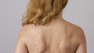 Хеликобактер и сыпь по телу