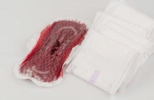 Нет месячных после кровотечения
