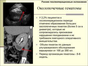 Гематома с уплотнением после операции