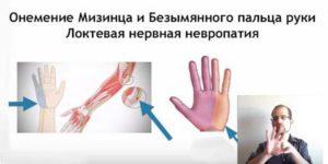 Онемение мизинца и безымянного пальца на левой руке