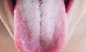 Грязно-синий налет на языке