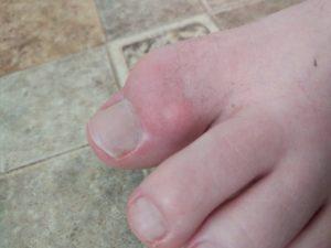 Опухлость после операции на пальце