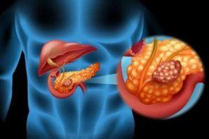 Геморой и хронический панкреатит