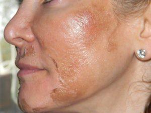 Оболазит верхний слой кожи на носу в одном месте