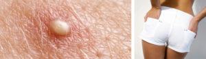 Образования кожи вокруг ануса и покраснение