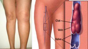 Операция, тромб под коленом, перетянули вену в паху, нет оттока