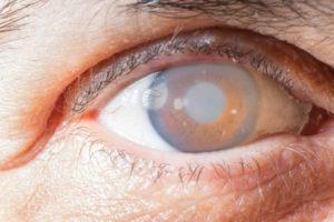 Пелена перед глазом после коагуляции