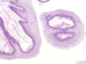Гистология после удаления плацентарного полипа