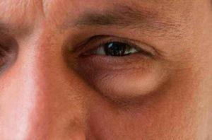 Отек лица с одной стороны и слезливость глаза