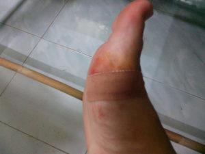 Глубокий порез стопы