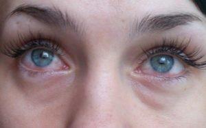 Гной из глаза после наращивания ресниц