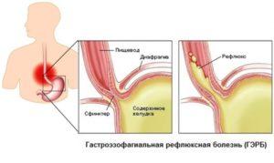 Грыжа пищевода, рефлюкс эзофагит