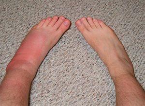 Опухла нога после укуса насекомого