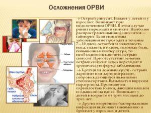 Осложнения у ребёнка после ОРВИ