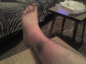 Опухшая нога после укуса собаки