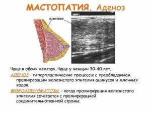 Отличие аденоза от мастопатии