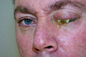 Осложнение на глаза при инфекционных болезнях