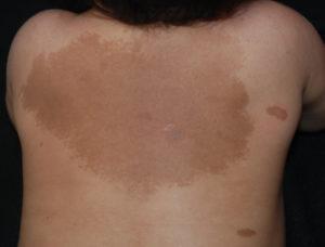 Нейрофиброматоз пигментные пятна