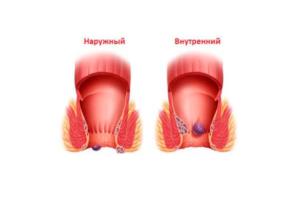Геморрой и запоры после родов
